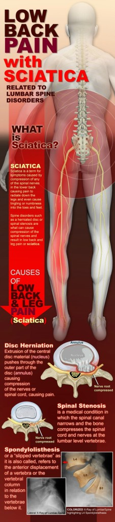 How To Help Relieve Sciatic Pain